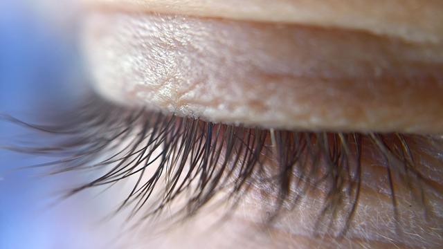 blefaroplastika-oko
